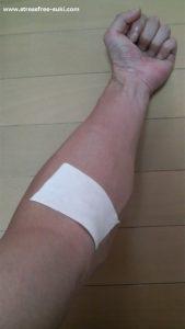 採血で内出血1