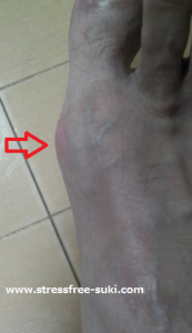 痛風になった足の親指の付け根